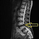 10. 腰部脊柱管狭窄症のあれこれ ― 手術すべきかどうか