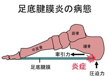 足底腱膜炎の病態