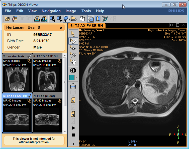 SnapCrab_Philips DICOM Viewer_2015-7-31_10-18-9_No-00.png